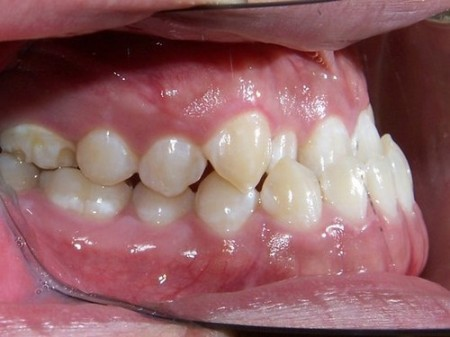Giải pháp can thiệp khi răng bị móm