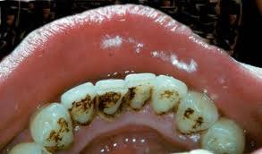 Cạo vôi răng có hại gì không