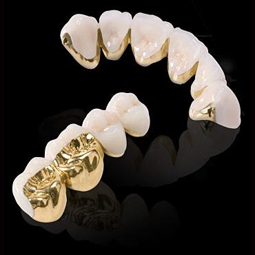 Quy trình thực hiện bọc răng sứ titan