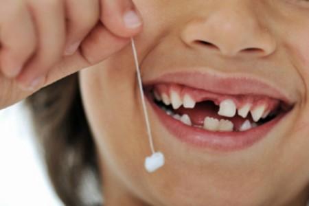 Giải pháp trồng răng Implant khi bị mất một răng