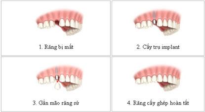 Cấy ghép Implant khi mất một răng cửa mất bao lâu