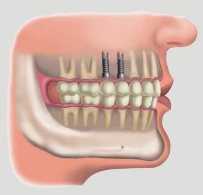 Những trường hợp không áp dụng cấy ghép implant