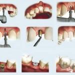 Phương pháp làm răng sứ không mài cùi răng