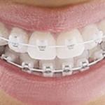 Niềng răng với mắc cài sứ