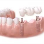 Phục hình răng bị mất với phương pháp trồng răng giả