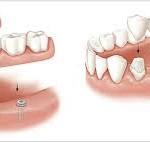 Trồng răng cố định tốt nhất