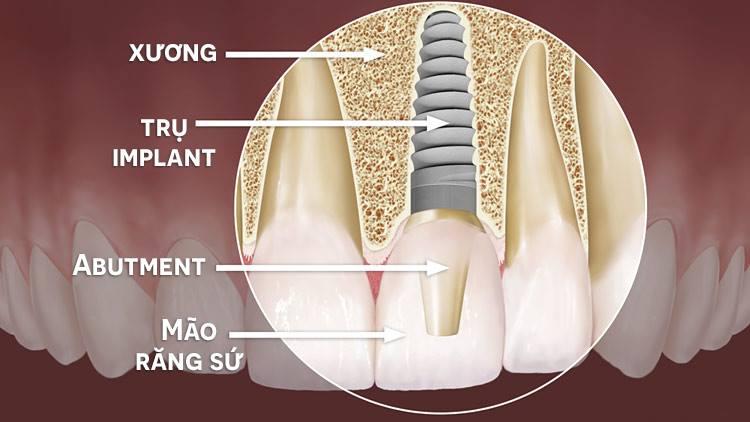 Trồng răng cố định tốt tại nha khoa