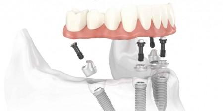 cấy ghép răng implant ở đâu tốt