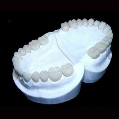 Quá trình bọc răng sứ Venus