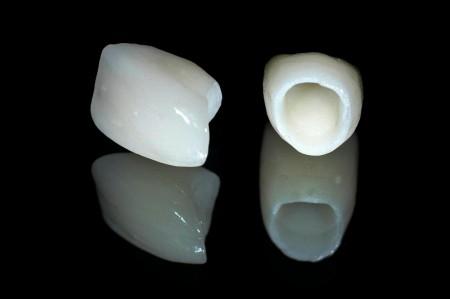 Chi phí răng sứ cercon HT