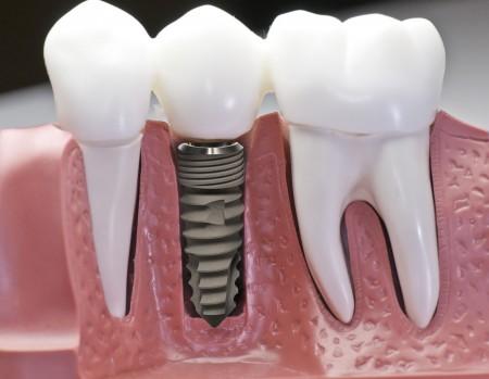 Quy trình cấy ghép răng implant hiệu quả cao