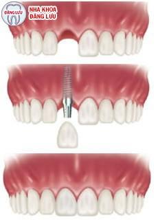 Cấy ghép implantkhi mất một răng