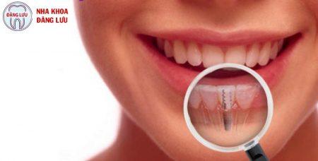 Cấy ghép implant khi mất một răng