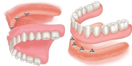Cấy ghép implant khi mất nhiều răng