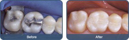 Điều trị sâu răng an toàn hiệu quả tại nha khoa