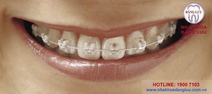 Niềng răng mắc cài inox