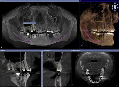 Phẫu thuật cười hở lợi