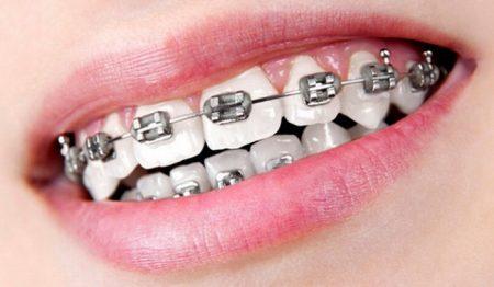 Phương pháp niềng răng nhanh hiệu quả