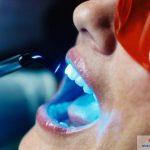 Tẩy trắng răng laser tại nha khoa