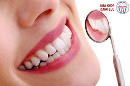 Cách làm trắng răng tại nha khoa