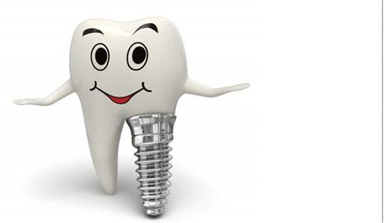 trồng răng implant có đau khôn