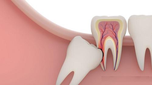 Có nên thực hiện nhổ răng khôn không ? 1
