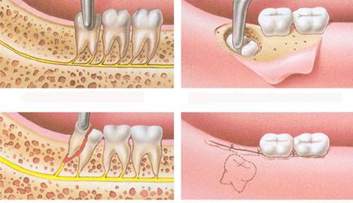 nhổ răng khôn khi mang thai có nguy hiểm không