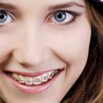 niềng răng có đắt không