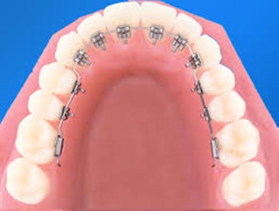 niềng răng giá rẻ nhất là bao nhiêu