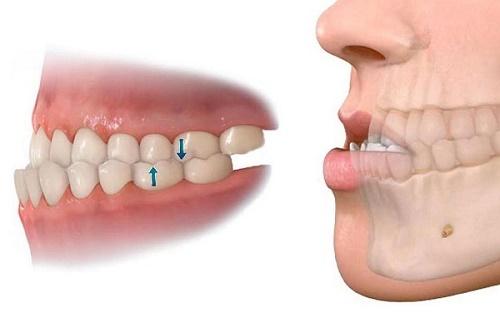 Phẫu thuật cắt xương hàm có nguy hiểm không 2