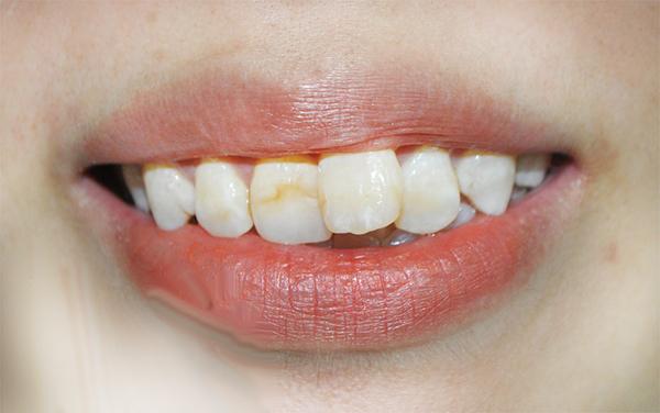 Niềng 1 cái răng bao nhiêu tiền?
