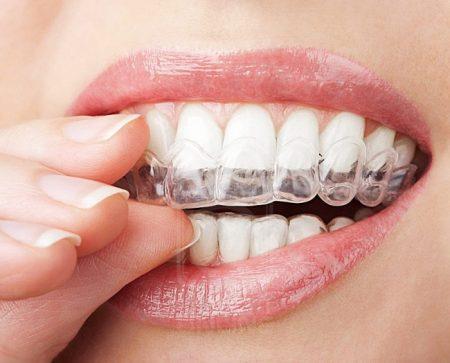Niềng răng 3D Clear thẩm mỹ vượt trội