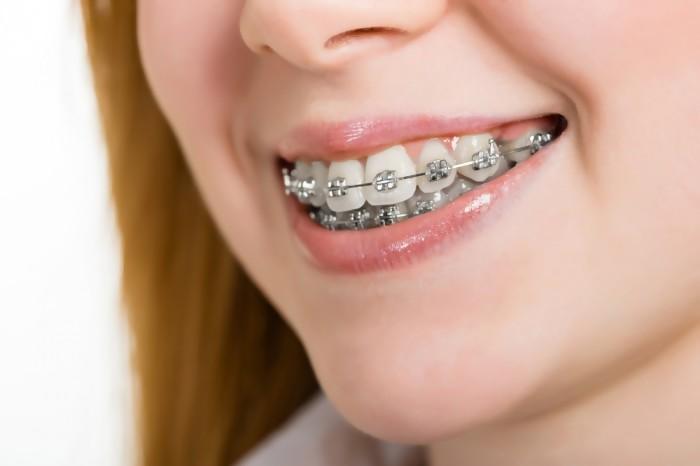 Niềng răng vẩu như thế nào hiệu quả?