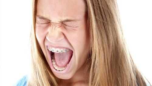 Niềng răng có bị hóp má không? Tìm hiểu kỹ tại nha khoa