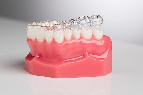 Niềng răng invisalign có nhổ răng không? Tìm hiểu phương pháp này