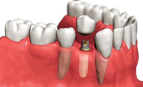 Trồng răng nên ăn gì? Thực đơn sau khi trồng răng cho bạn 1
