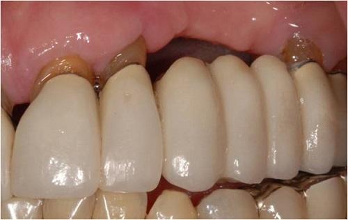 Răng sứ bị hỏng nên làm gì để khắc phục? 2