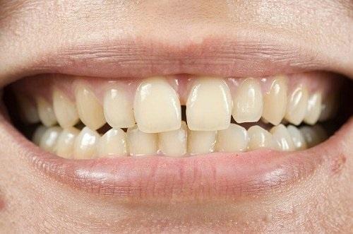 Răng sứ bị thưa là do đâu? 3 cách chữa răng sứ bị thưa 2