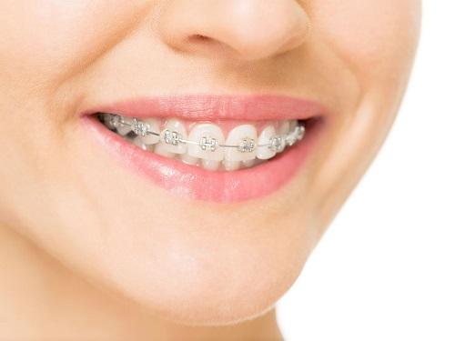 Niềng răng bị viêm lợi do đâu? Cách khắc phục hiệu quả 1