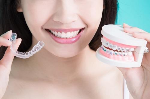 Niềng răng có nên dùng bàn chải điện? Nha khoa lý giải 2