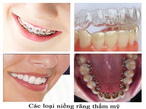Niềng răng rẻ nhất Hà Nội liệu có đảm bảo? 3