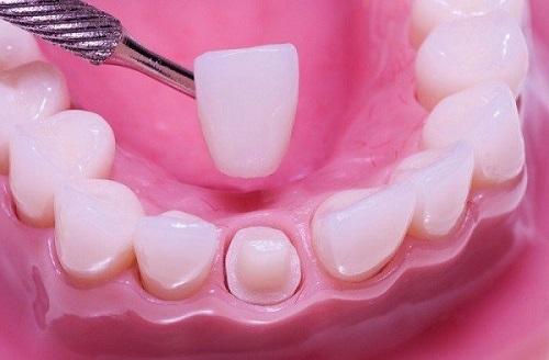 Bọc răng sứ có tháo ra được không? Chuyên gia giải đáp 1